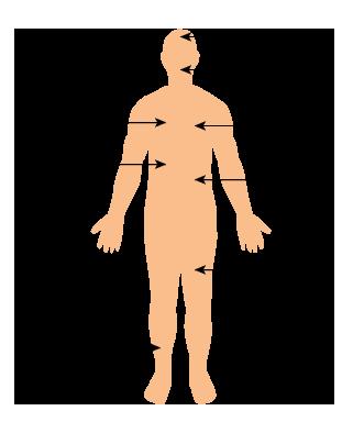 Anorexie Mentale Boulimie Compulsions Alimentaires Et Troubles Du
